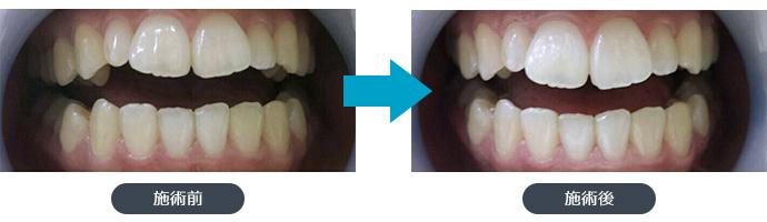 施術前と施術後の歯の写真